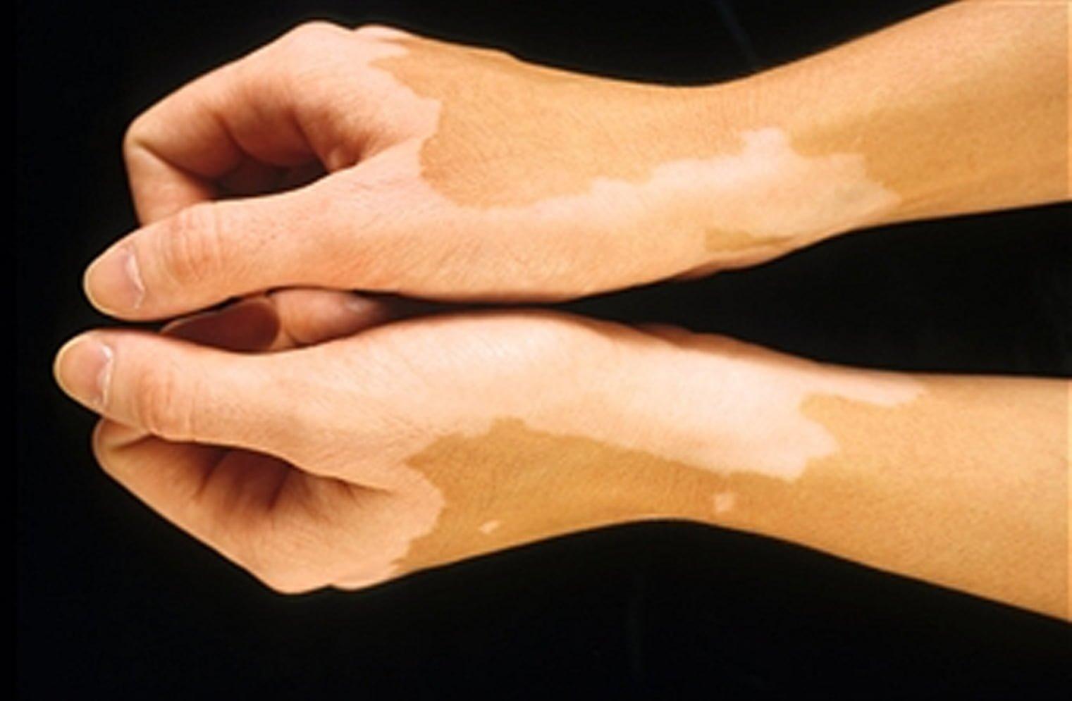 Vitiligo na Medicina Tradicional Chinesa